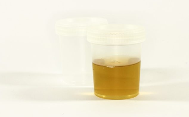 urine-sample